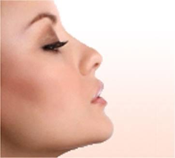 face-procedures-image-4 Facial Rejuvenation