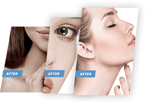 facesub-gallery-image UltraShape