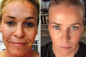 chelsea-handler Improve the health and appearance of your skin with the ultimate in laser skin resurfacing
